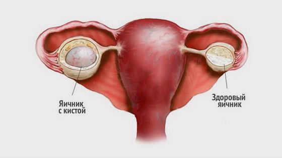Behandlung Von Ovarialzysten Ohne Operation Medikamente Und